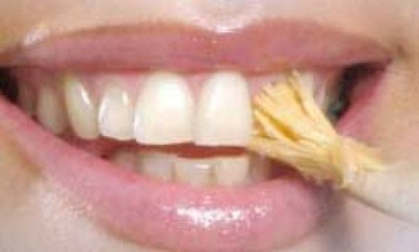دندانپزشكي: انواع مسواک